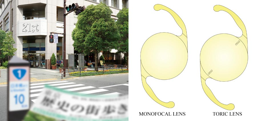 Differences in Range of Vision (Monofocal Lens vs. Multifocal Lens)