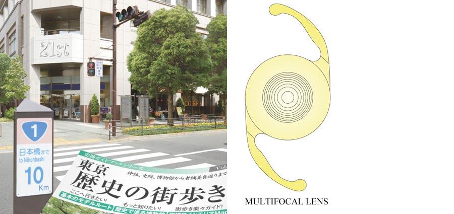 Differences in Range of Vision (Monofocal Lens vs. Multifocal Lens)