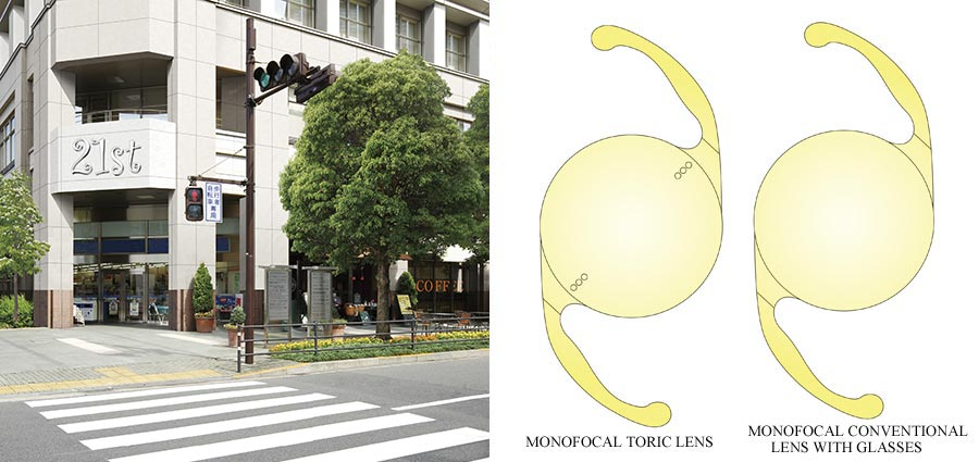 Differences in image quality (Monofocal Conventional Lens vs. Monofocal Toric Lens)