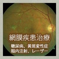 網膜疾患治療(糖尿病、黄斑変性症、眼内注射、レーザー)